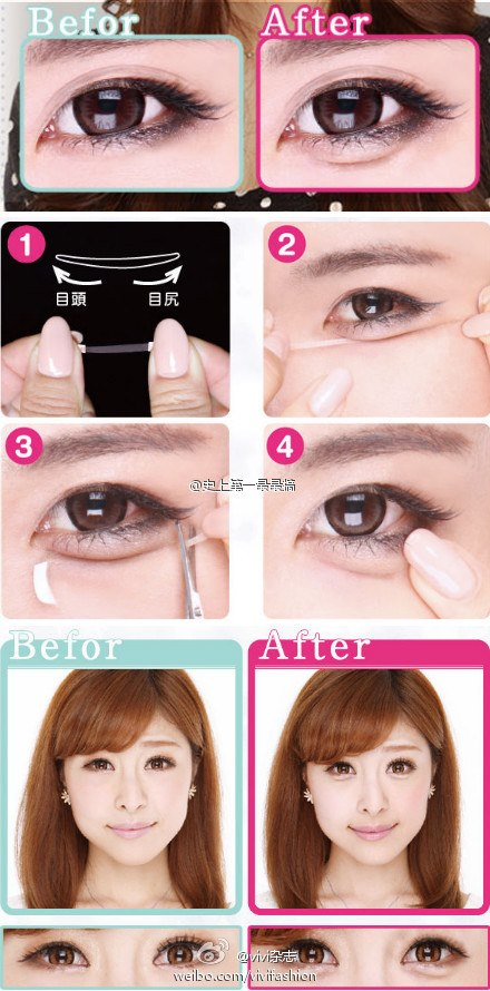 asian eyebags.jpg