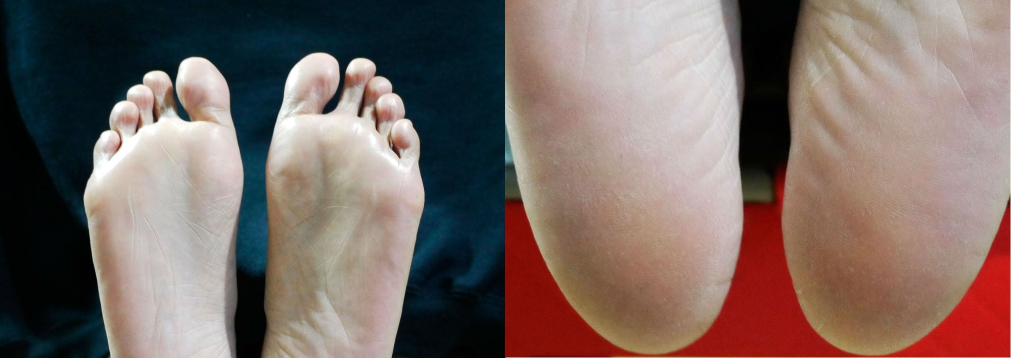Before using Baby Foot, with a close up of my super dry heels