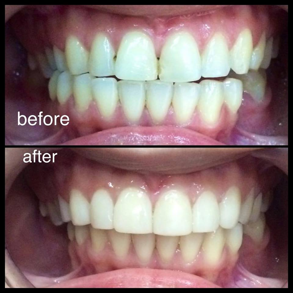 A sample of my dentist's veneer work on another patient (Image used with permission)