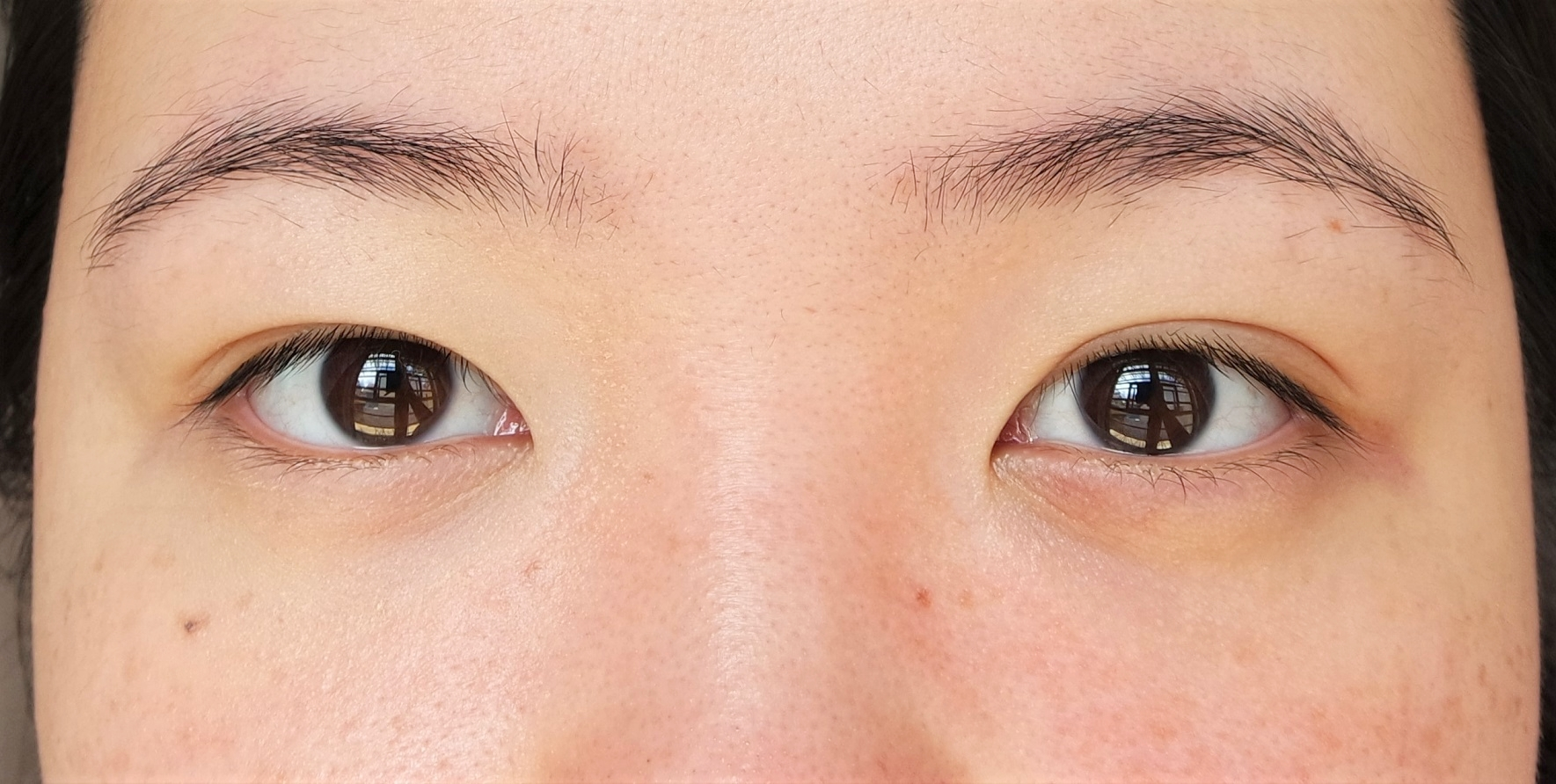 On your left: Wearing a sheer layer of the 2-in-1 Eye Bag Miracle Kit; on your right: bare skin