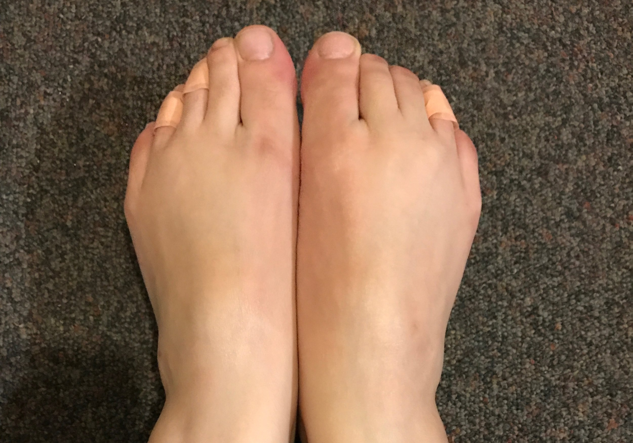Saying goodbye to my ugly feet before I use Baby Foot!