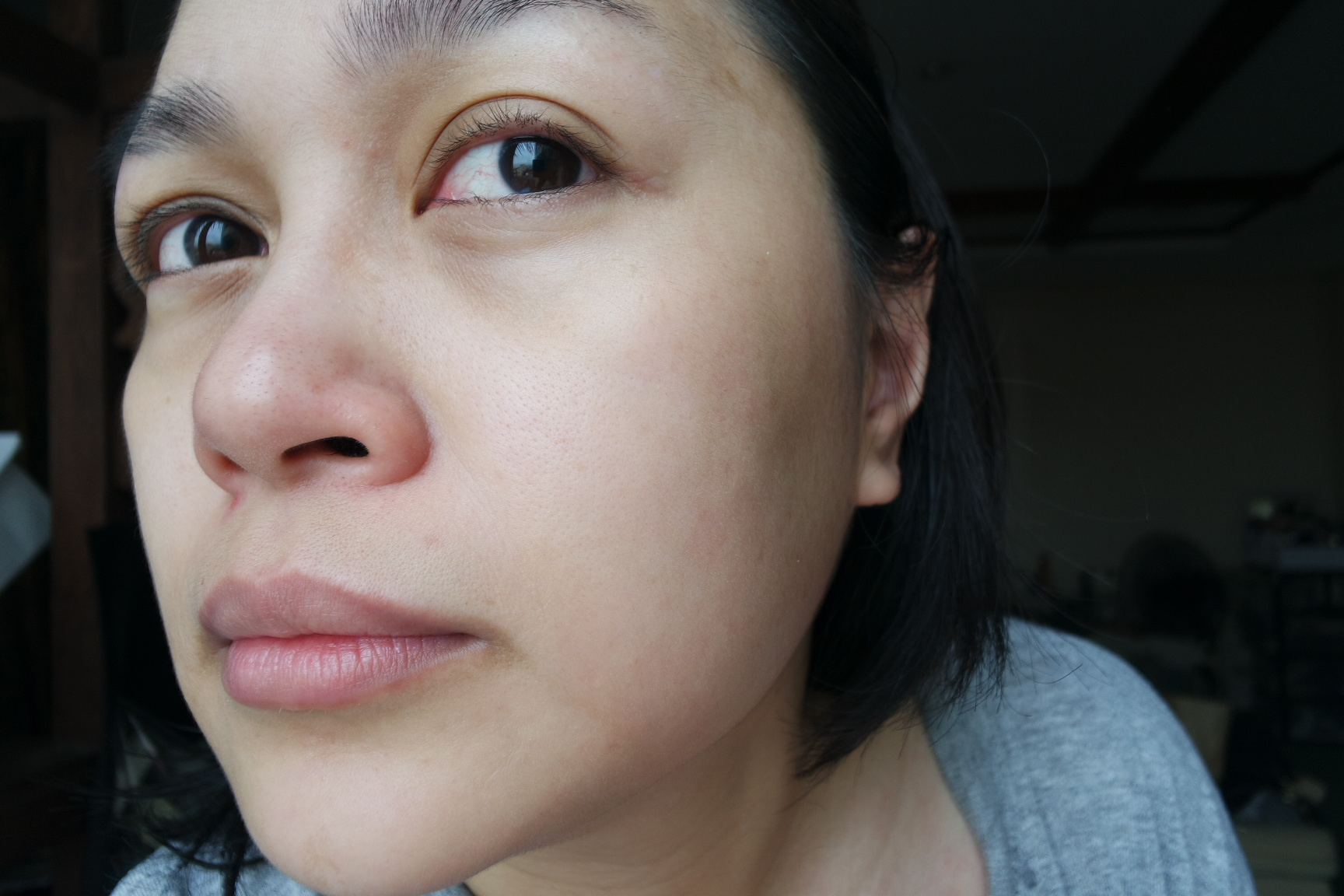 Before the treatment - Redness on my nose, rough texture on my cheeks, some dullness