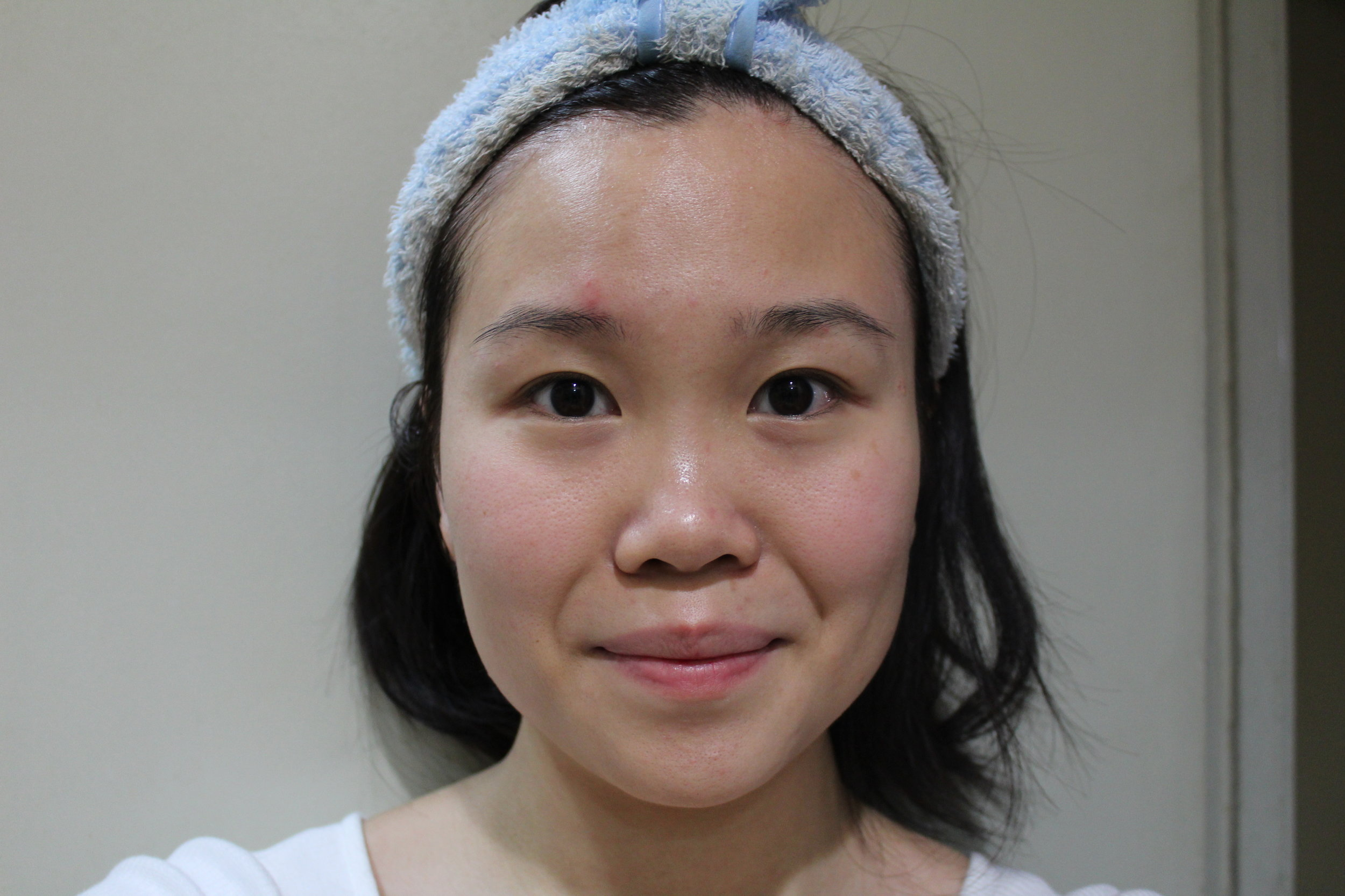 The state of my face, before using Freshel