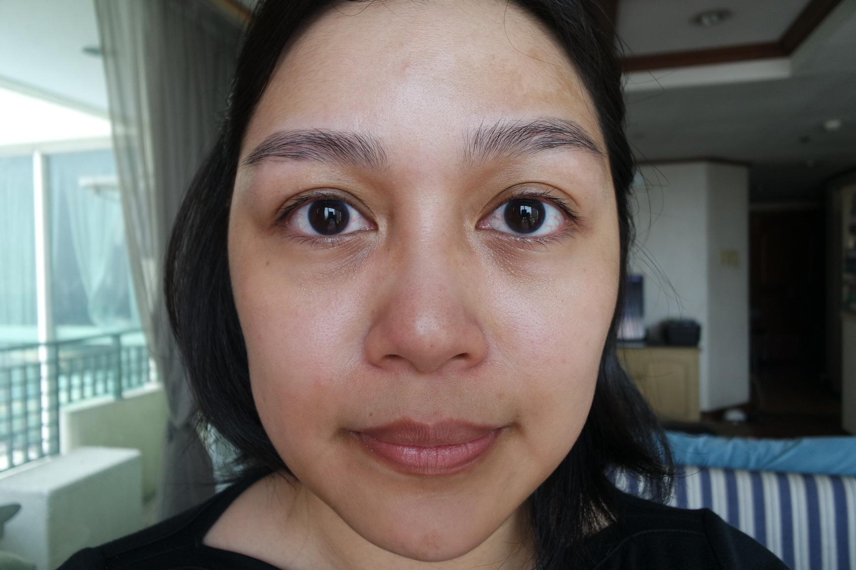 Den's bare face, with eye cream applied