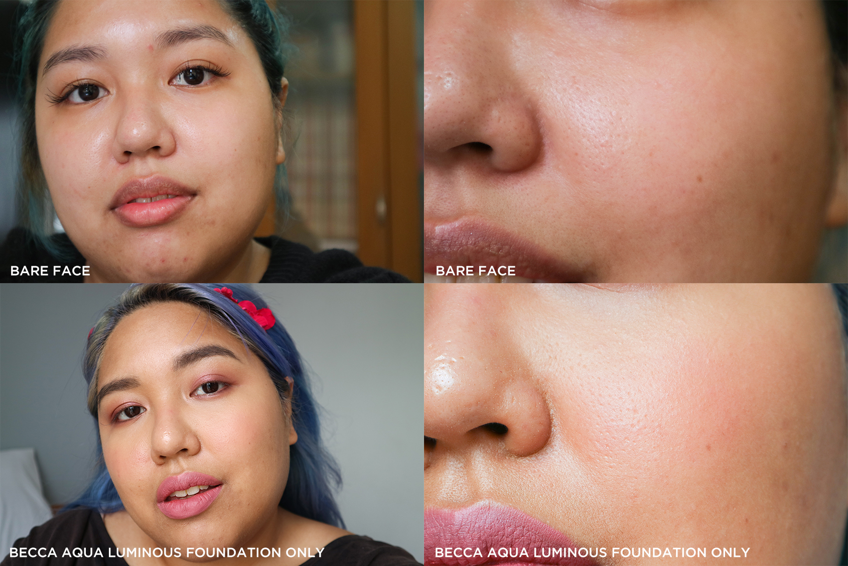 Bare-faced, and with no primers used, my pores are completely visible and the texture on my mouth area is very pronounced.
