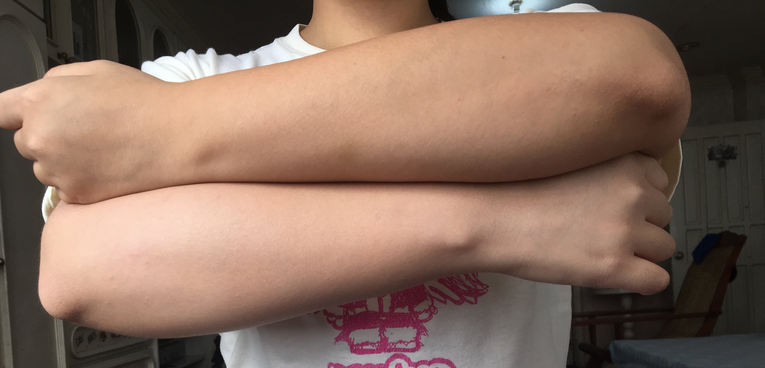The arm on top shows my commuter tan, while I applied the Shiroashi Hime to the arm below!