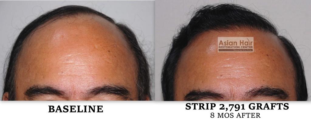 Image via the Asian Hair Restoration Center
