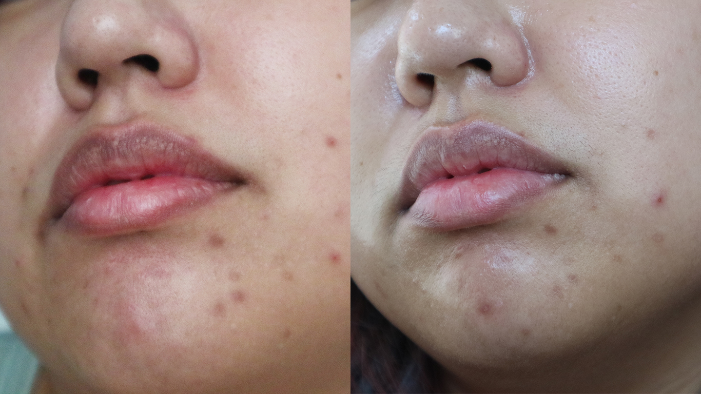 Before and After: Not a marked improvement but you can see  some  fading. My face definitely  feels  a lot smoother though.