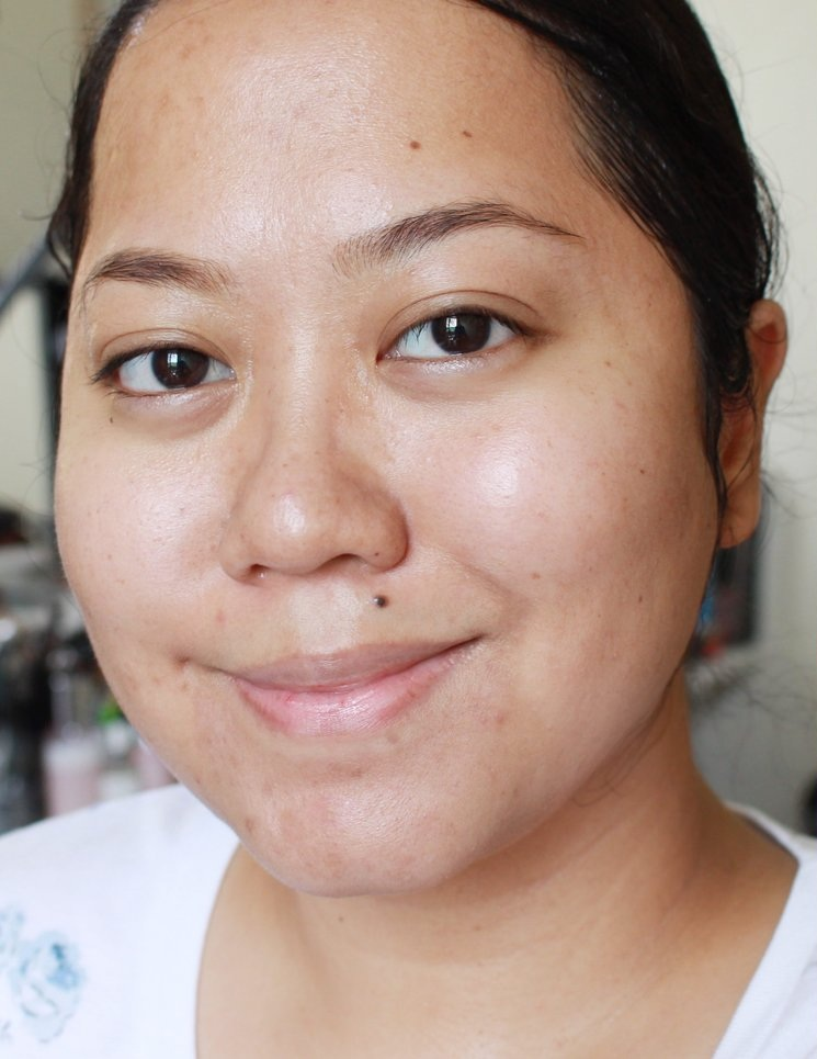 My skin two years ago. Looking great but still had a lot of texture and healing old blemishes.