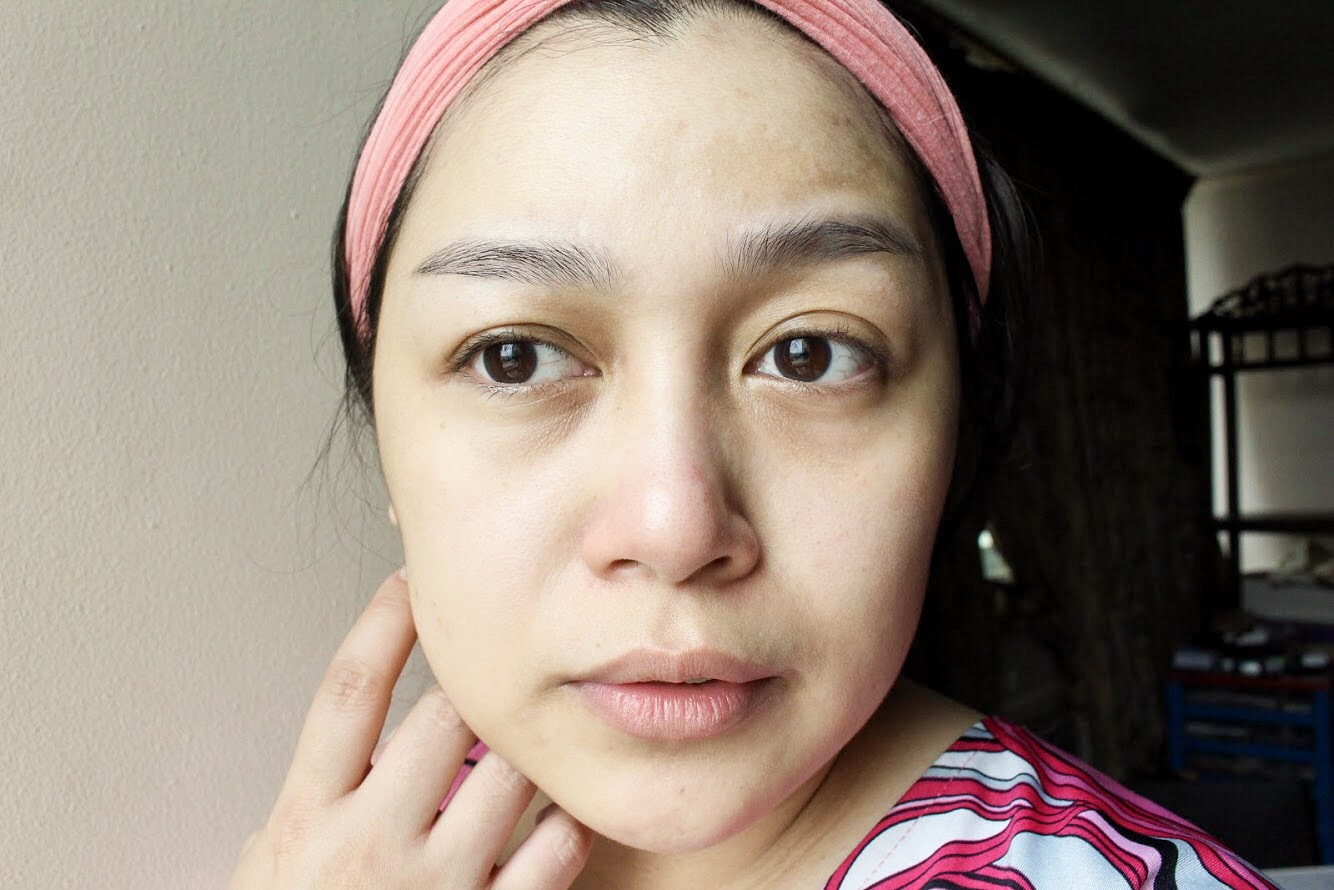 After: Brighter complexion, pimple are less red, no more flakiness