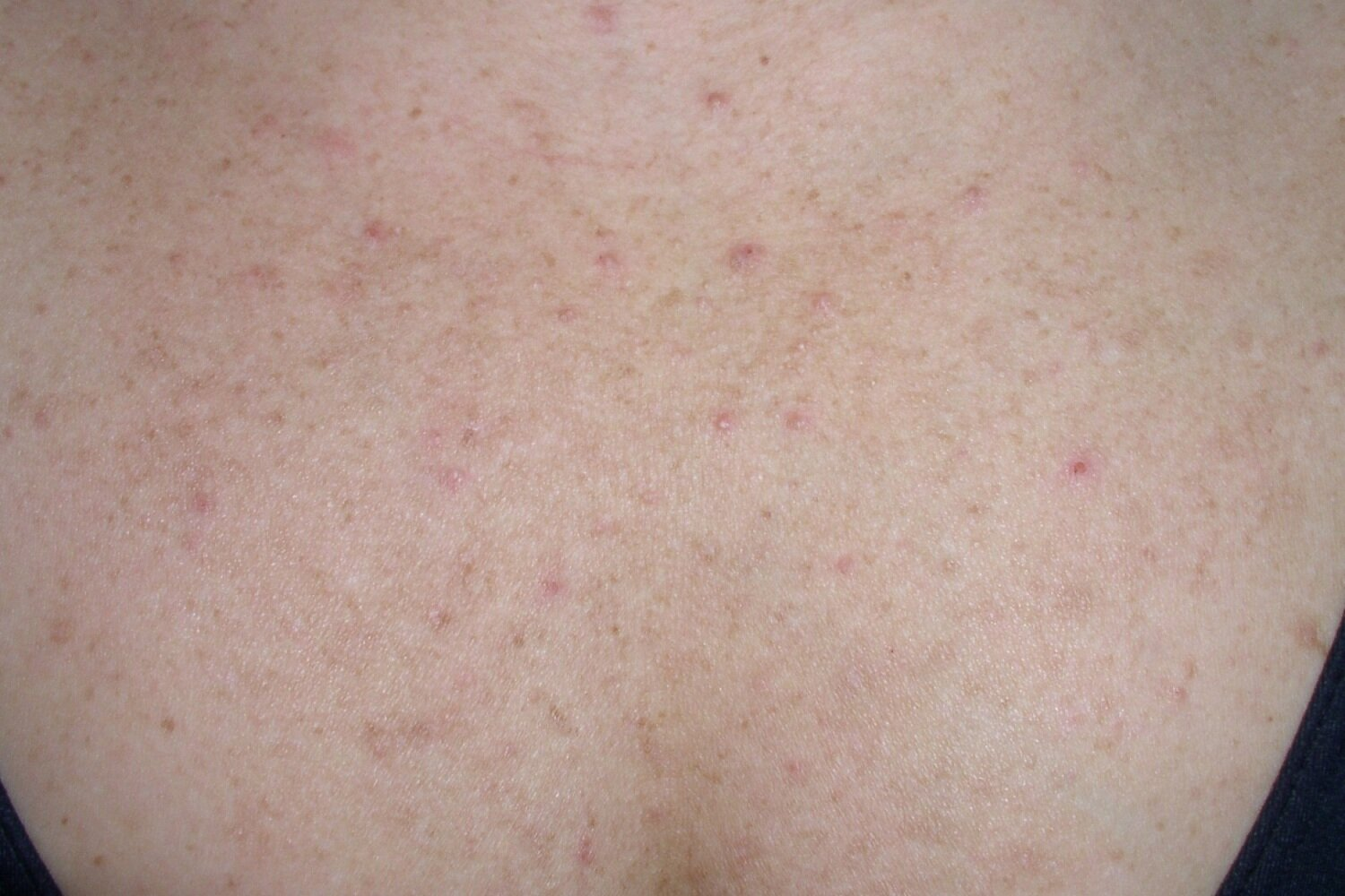Fungal Acne 101 What It Is How It S Different From A Regular Breakout And What To Do About It Project Vanity