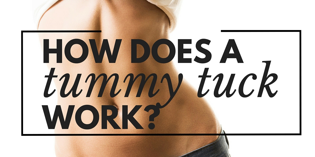 how does a tummy tuck work