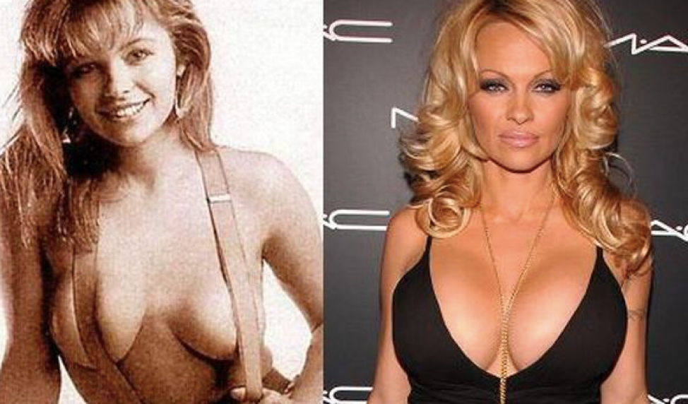 breast augmentation before and after celebrity edition