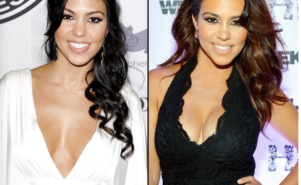 Breast Augmentation Before And After Celebrity Edition Atlantic
