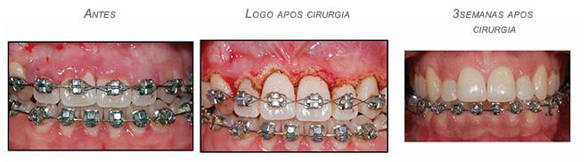 Gengivectomia feita com DC LAser antes,durante e depois