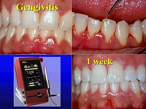 Tratamento de Gengivite antes,durante e 1 semana apos a utilizacao do DC Laser