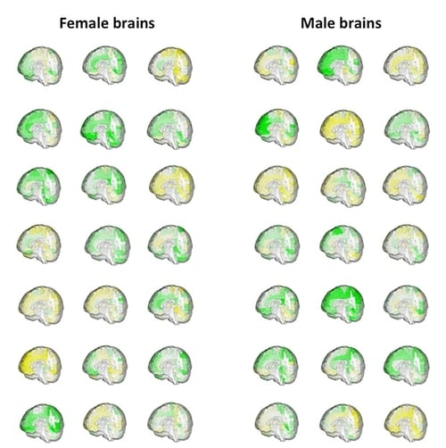 Male Brains versus Female Brains.jpg