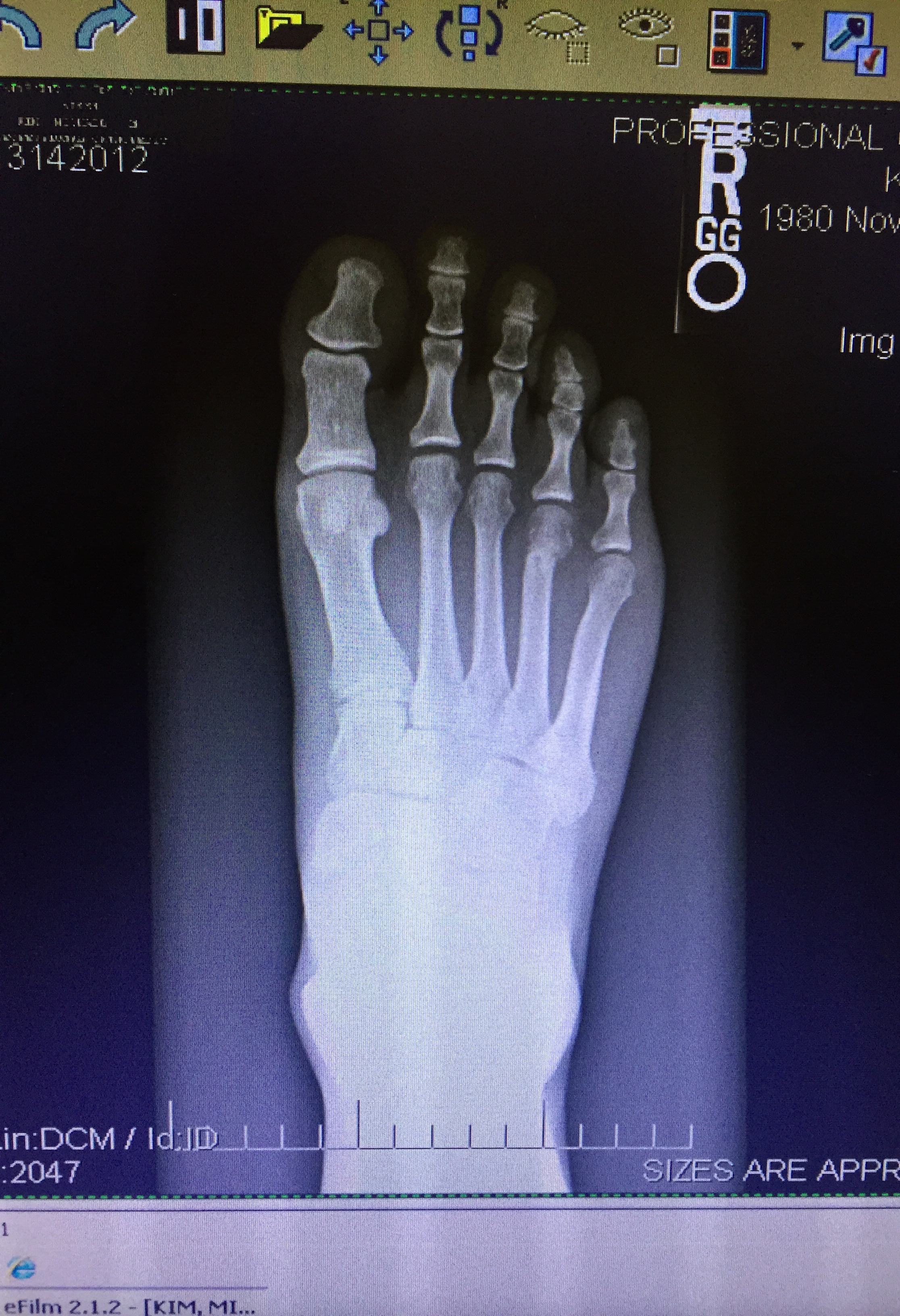 (x rays showed a slight fracture on the 4th metatarsal)