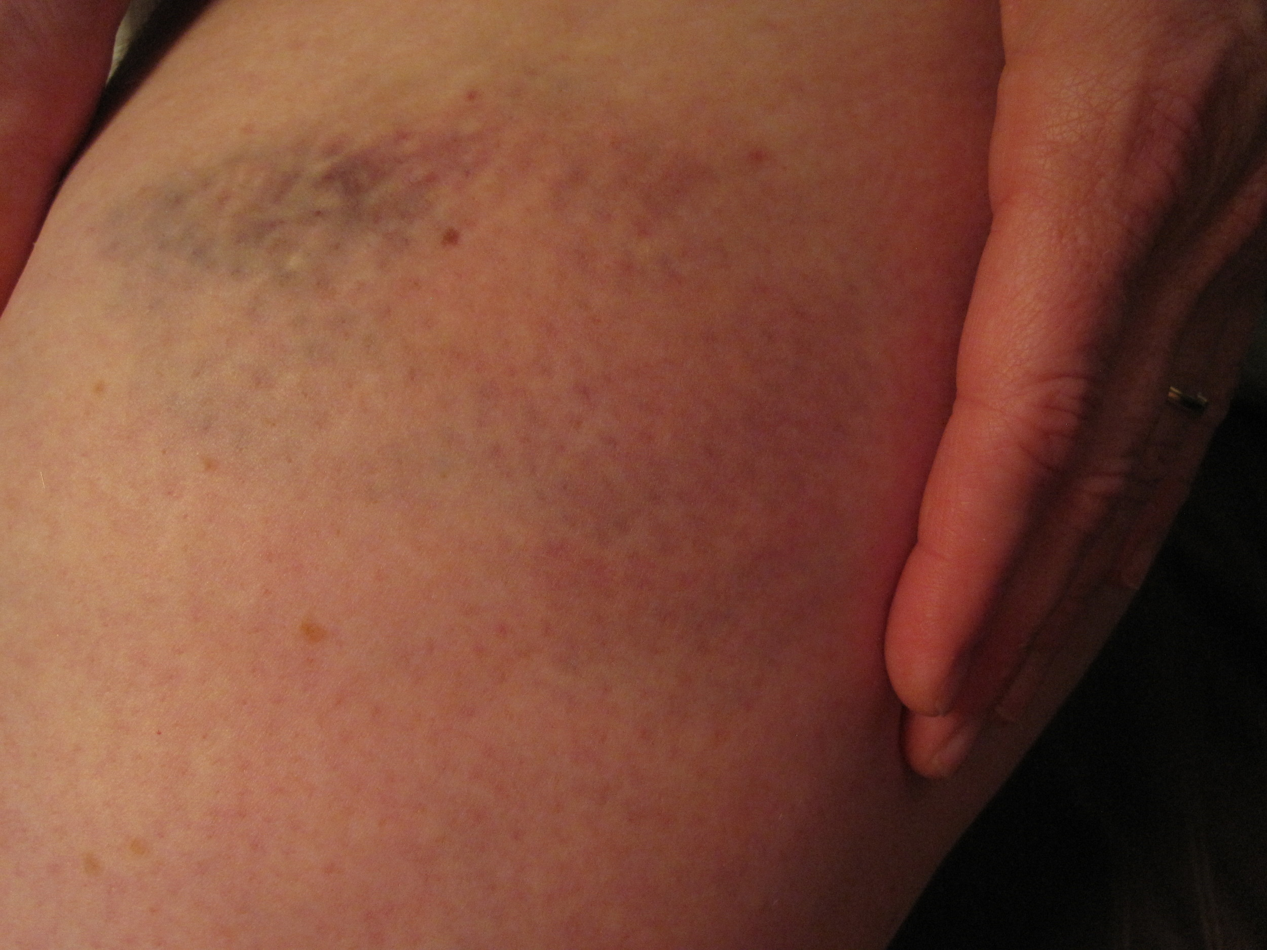 Derby bruises May  2010 (4).jpg