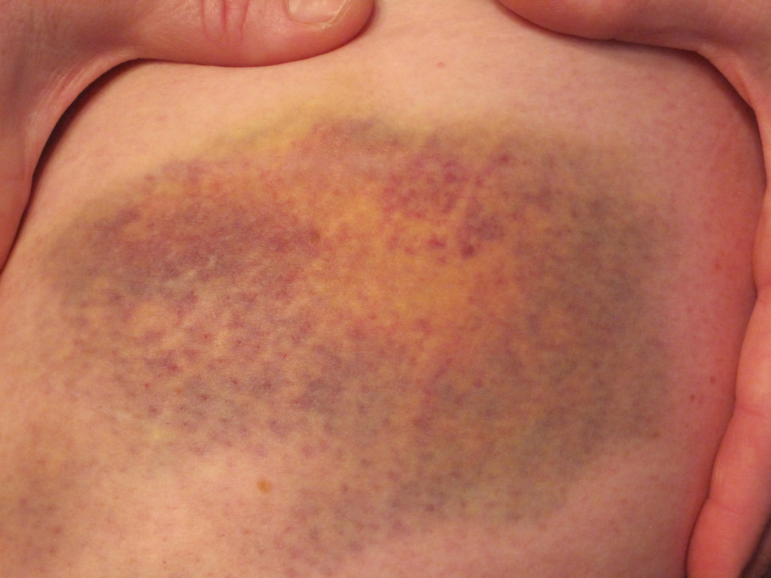 Derby bruises May, 2010 (3).jpg