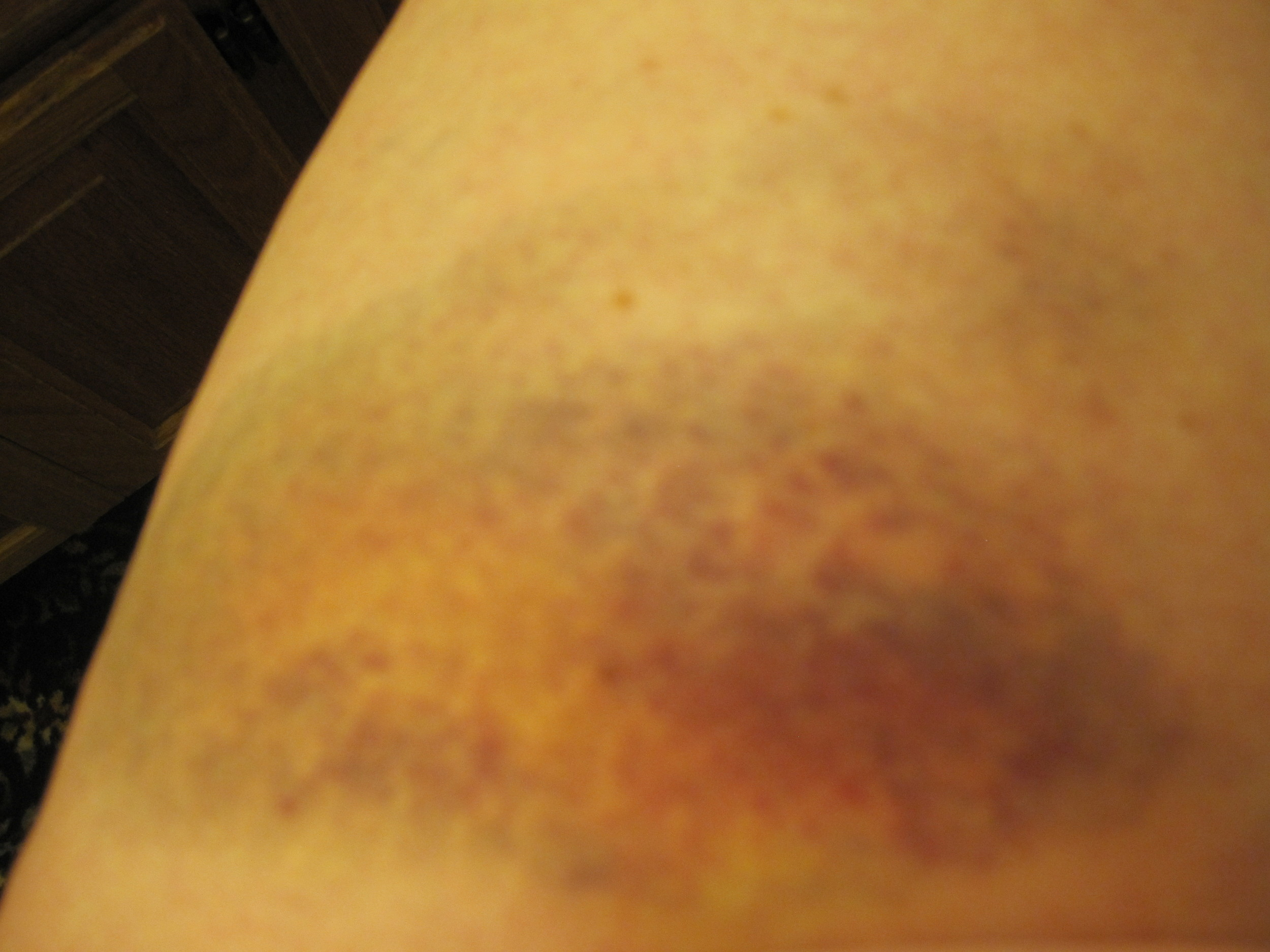 Derby bruises May, 2010 (23).jpg