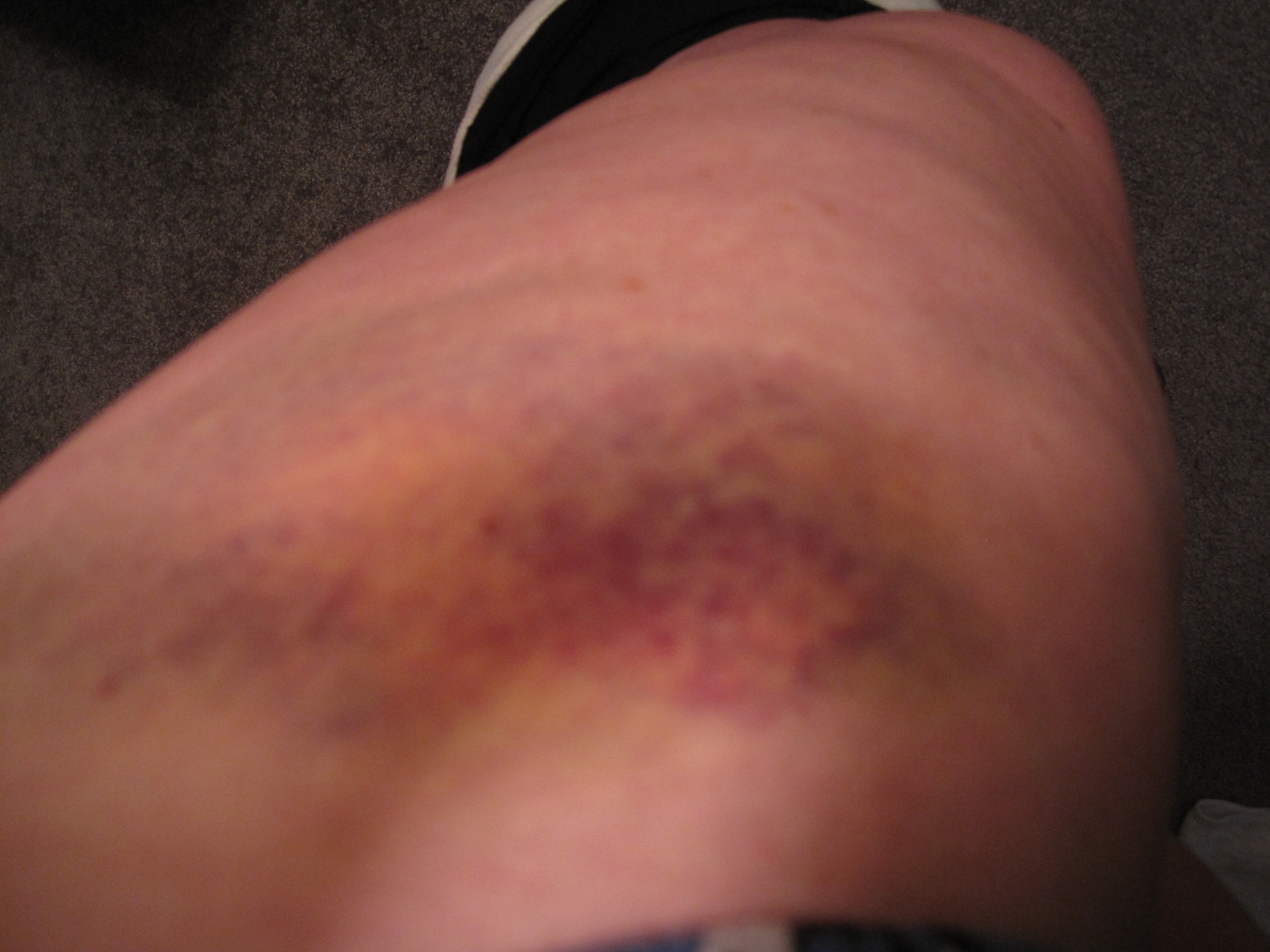 Derby bruises May  2010 (30).jpg