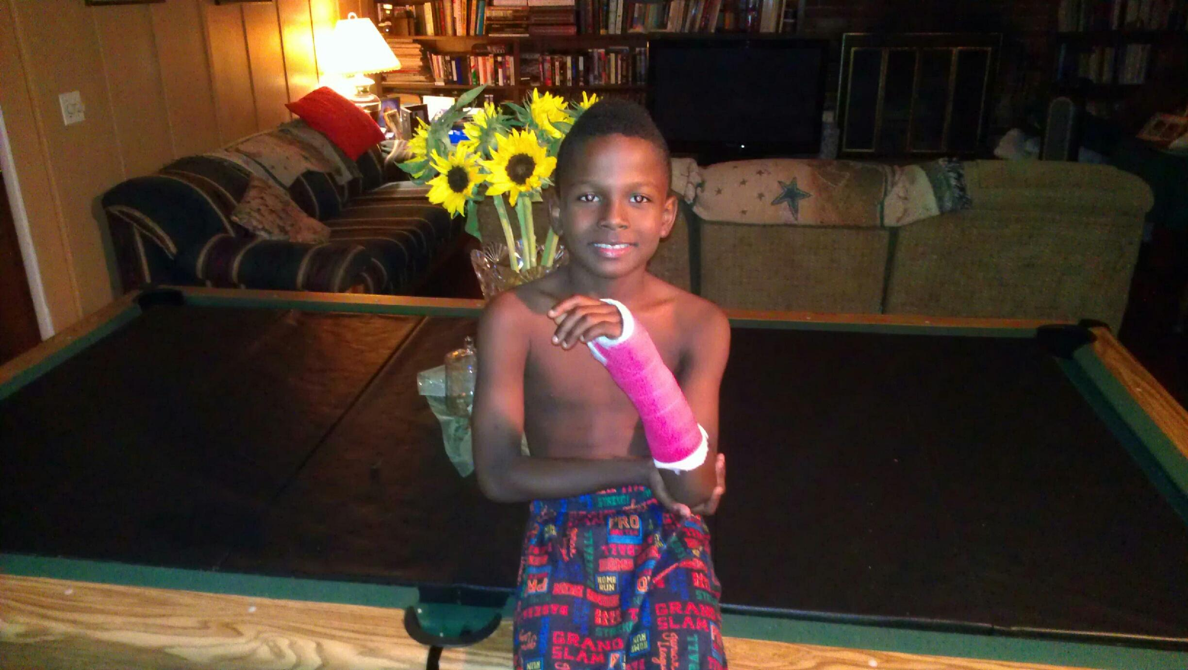 Kalonji, age 8 in his red cast posing in his grandparents' living-room in Randallstown, Maryland