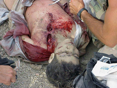 Omar_Khadr_getting_battlefield_first_aid.jpg