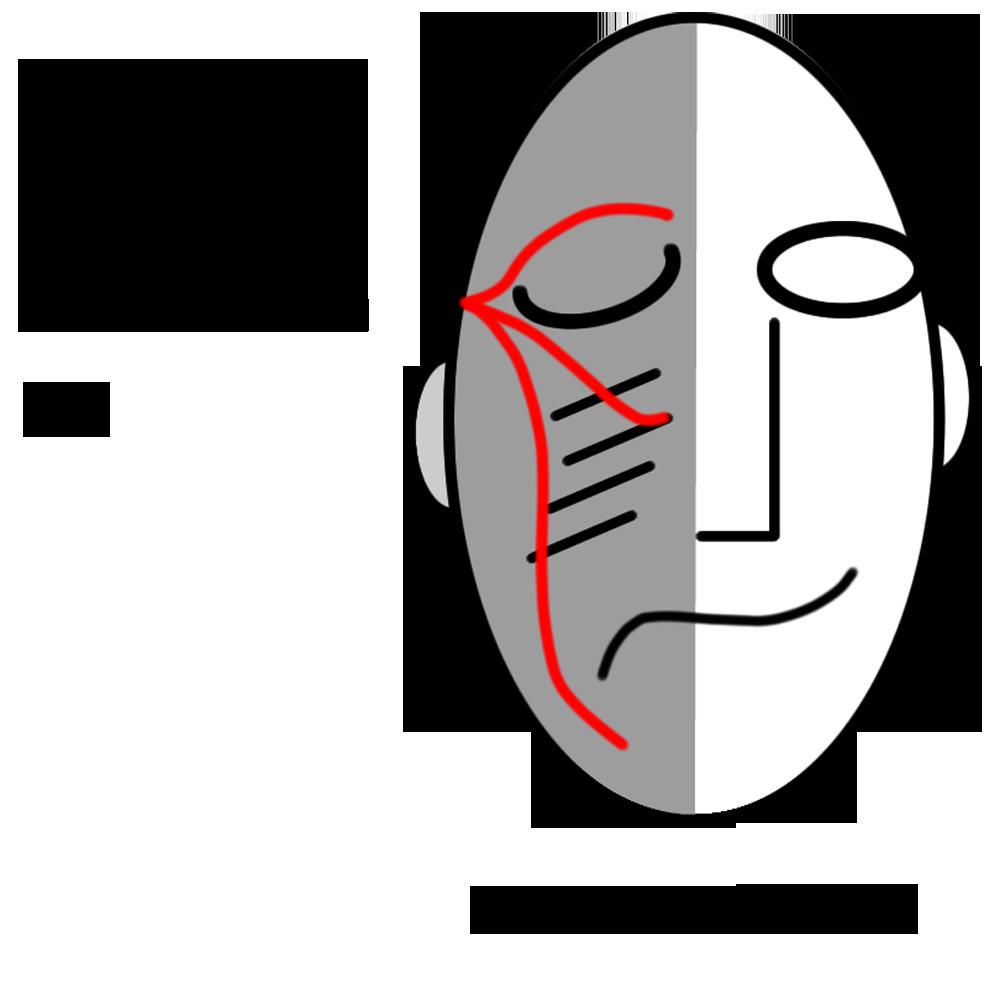 Trigeminal Neuralgia Association