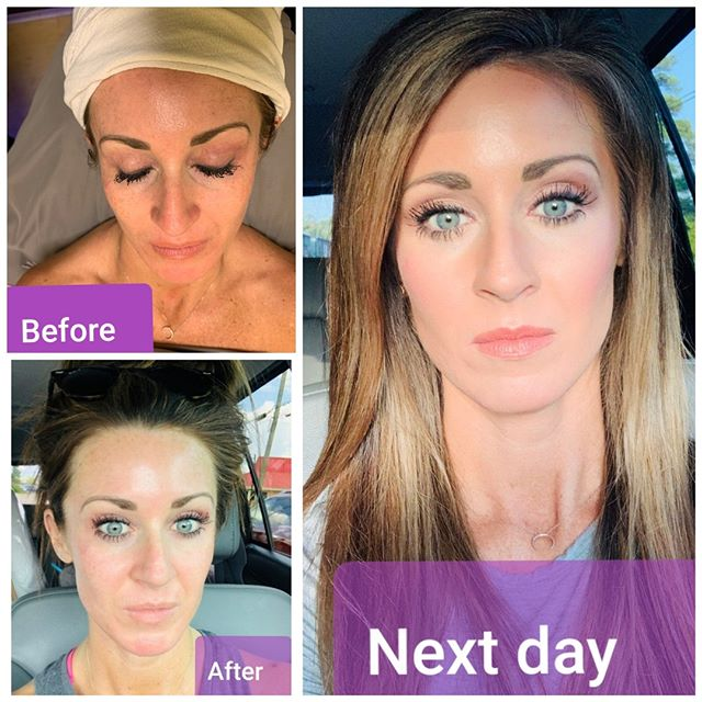 So we love a good face with makeup but what about after its washed and bare?🤔🤔 Do you love your face without makeup as much as with it?  Look at these results ‼ After just 2 Hydrafacial appointments her skin has really improved dramatically!  Hydrafacial can target so many different issues head on and make you feel good about yourself with having to wear a bit of makeup if you want ‼💁🏽‍♀️ Schedule your HydraFacial at Spa on Main to get real results! We promise you will NOT be disappointed 😊😉🤩 #hydrafacial #hydrafacialnation #beforeandafter #eldoradoar