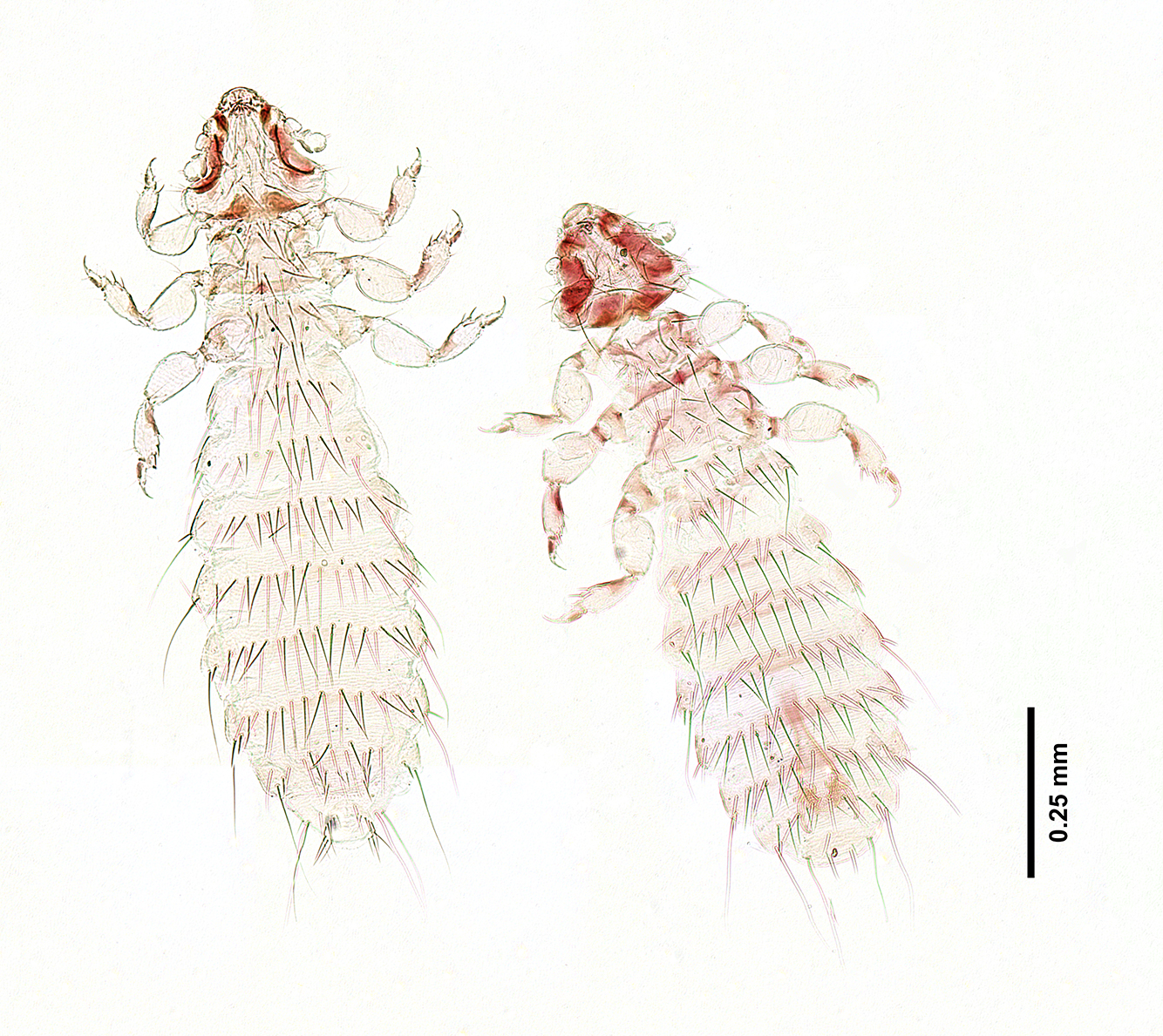 These are two of the louse that Lauren Smith was scanning.