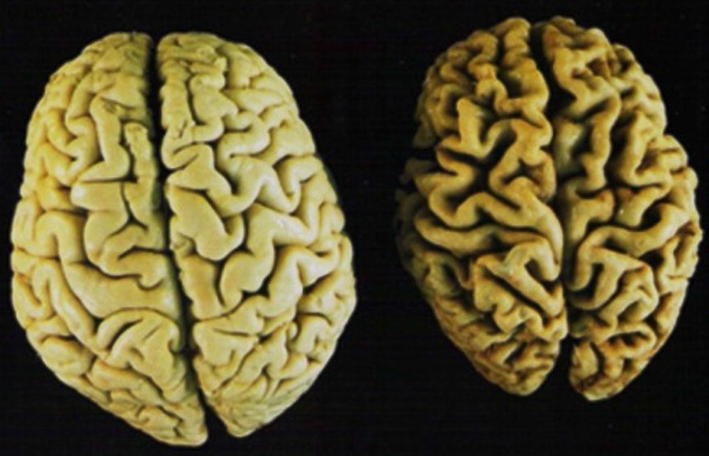 Young Brain vs. Elderly Brain