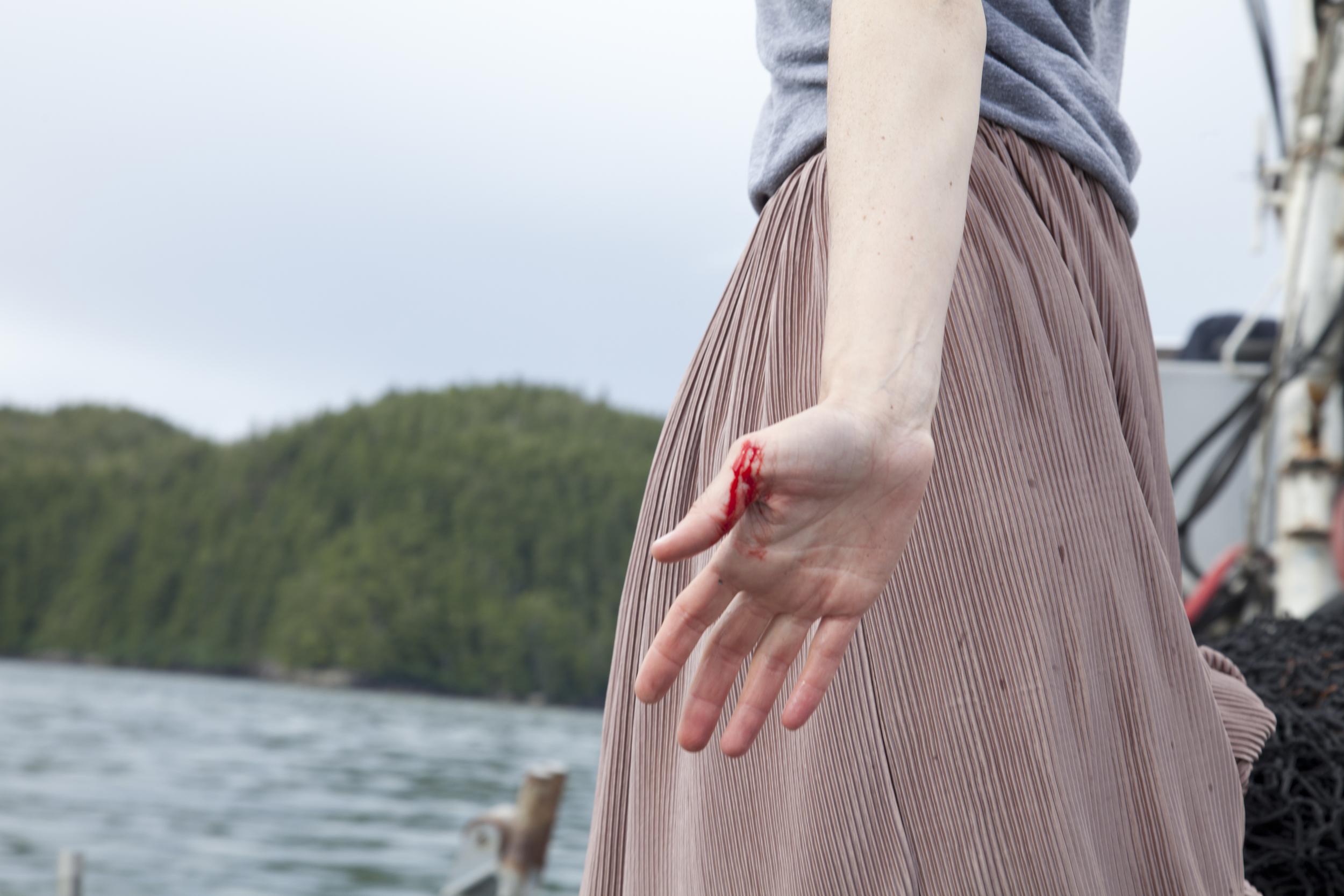 carmen_king_bleeding_hand.jpg