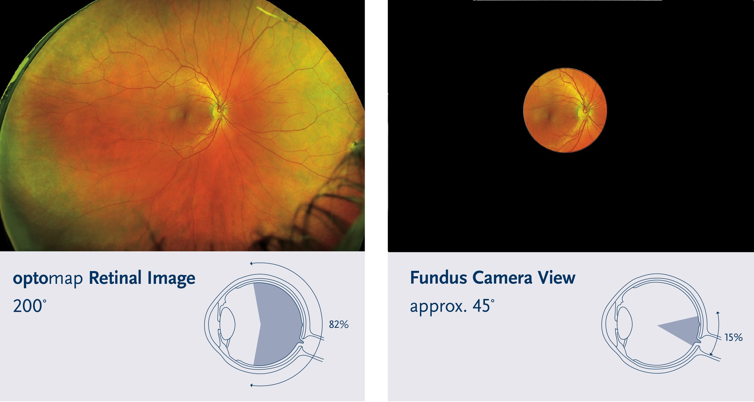 Comparison Fields of View - blackout.jpg