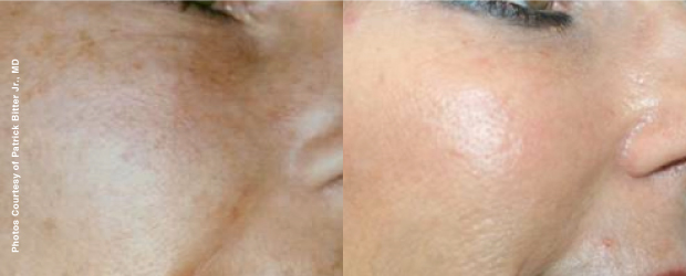 Before treatment 38 years old                             After treatment 49 years old  After 11 years of Forever Young BBL treatments, the skin looks younger...