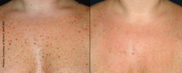 12 days after 2 Forever Young BBL treatments