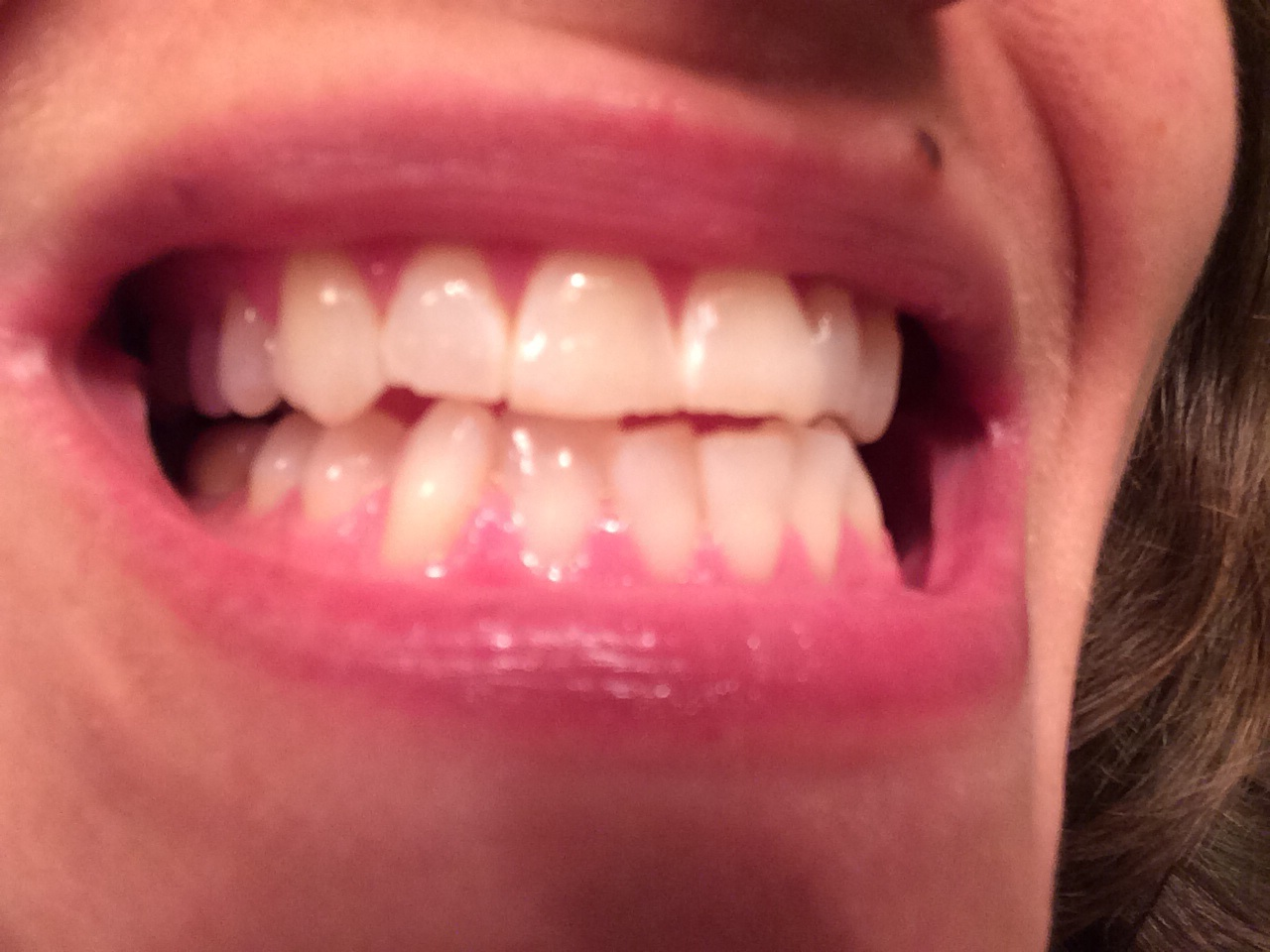 My chompers post-whitening.