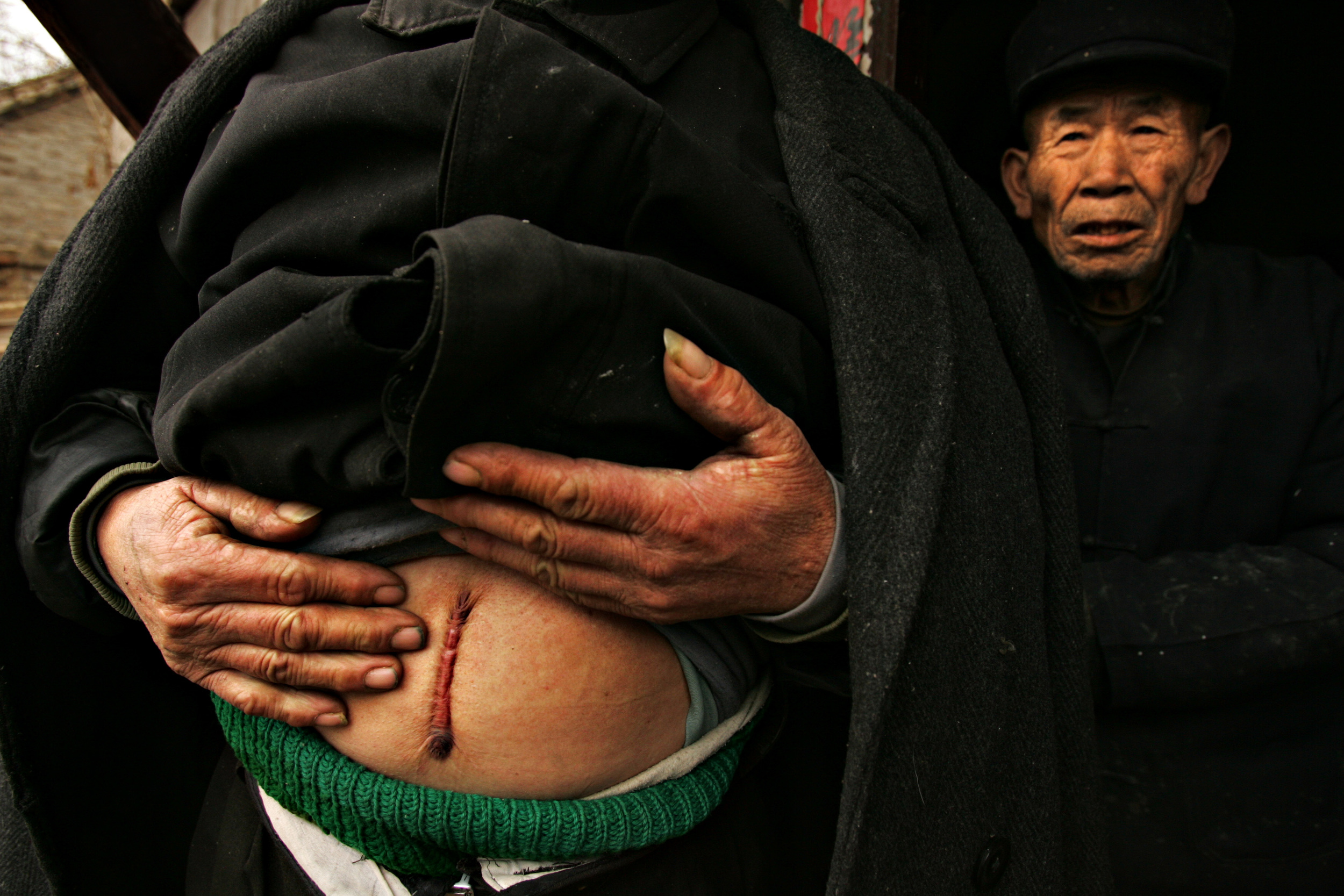 Wang Zi Qing, 60, shows the scar where a tumor was removed from his stomach. He used to be a fisherman but is too sick to work anymore. His older and younger brother died of cancer within a month of each other.