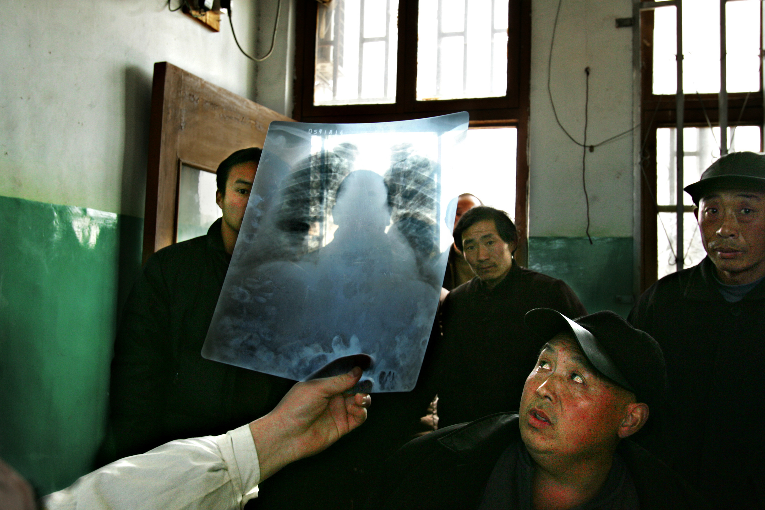 Liu Tianheng looks at his X-ray at the Shenqiu County Hospital. Liu has stomach cancer and brought his X-ray along with his medical records to meet with the head of the cancer unit at the hospital, Dr. Wang Yong Zeng.