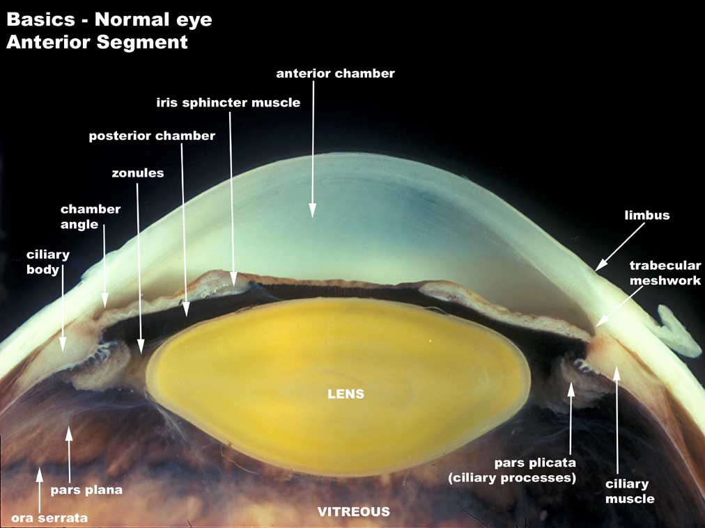 Weng Sehu Cataract Lens.jpg