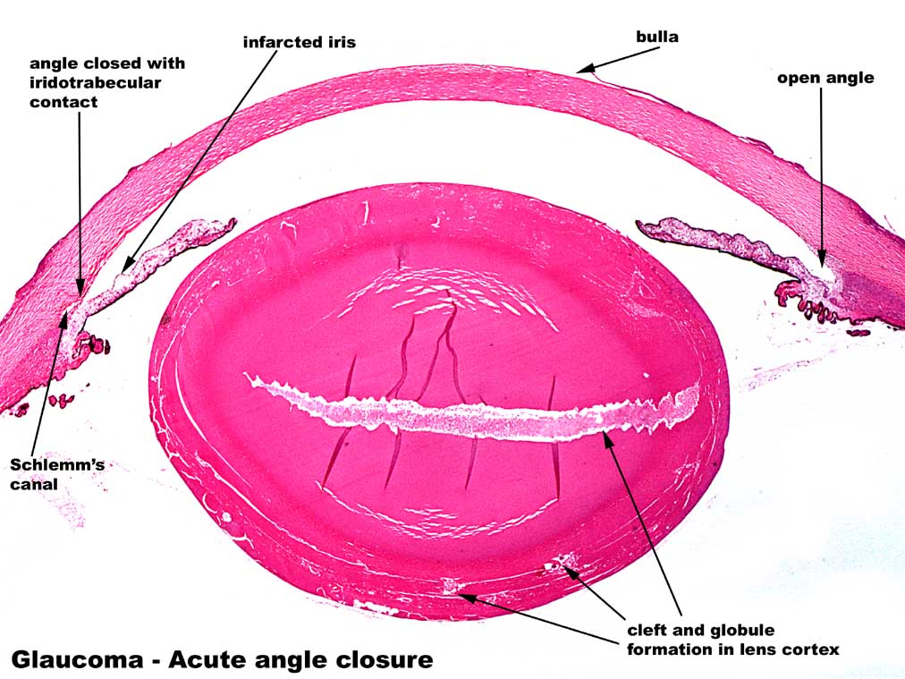 Weng Sehu Cataract Angle Closure Glaucoma.jpg