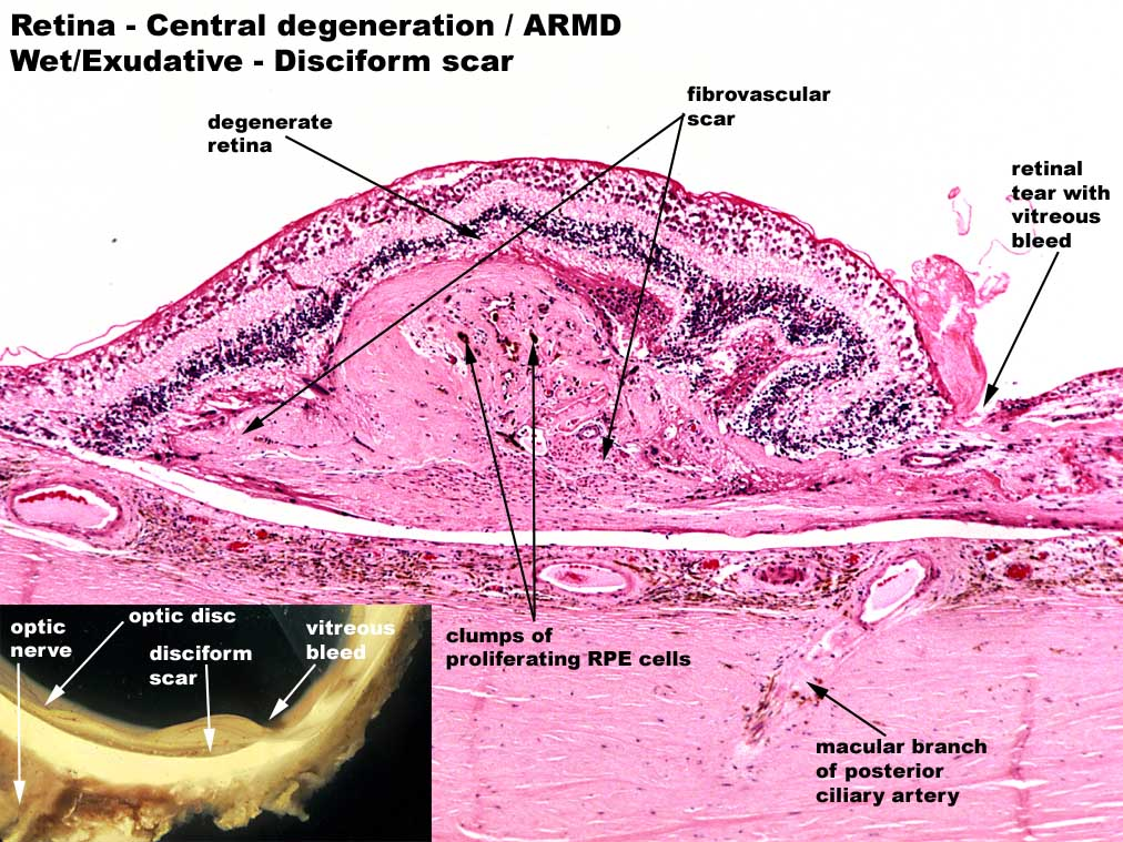 Weng Sehu Retina Age Related Macular Degeneration.jpg
