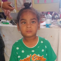 Ajay - Ajay is a 3-year-old boy with bilateral cataracts. Read more...
