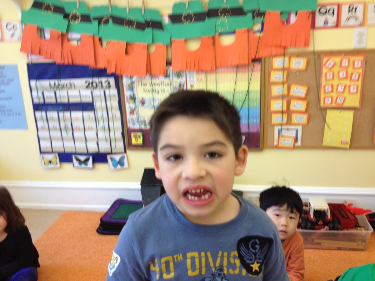 Sam lost a tooth.