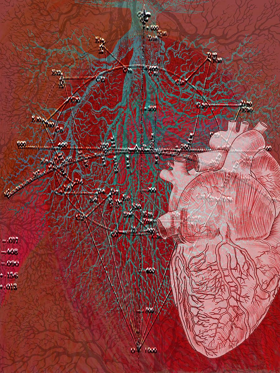 "Deviated Heart ,2017 Photo-digital mixed media, pigment print on hot press paper Edition of 3 36"" x 24"""