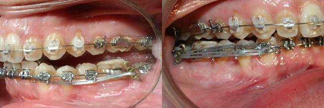 Préparation orthodontique pré-chirurgicale: correction des compensations dento-alvéolaires. Traction par chaînettes élastomériques pour un recul en masse et un redressement de l'axe de l'incisive mandibulaire par linguo-version à partir de plaques vissées postérieures et après corticotomies. La traction est effectuée en deux phases, la chaînette élastomérique est appliquée sur la canine qui entraîne les secteurs latéraux puis sur la boucle de l'arc pour un recul des incisives.