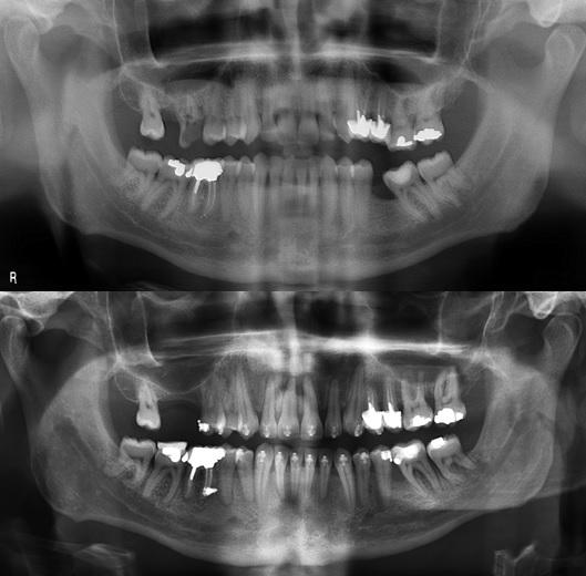 Redressement d'axe molaire après corticotomies mésiales à 37.