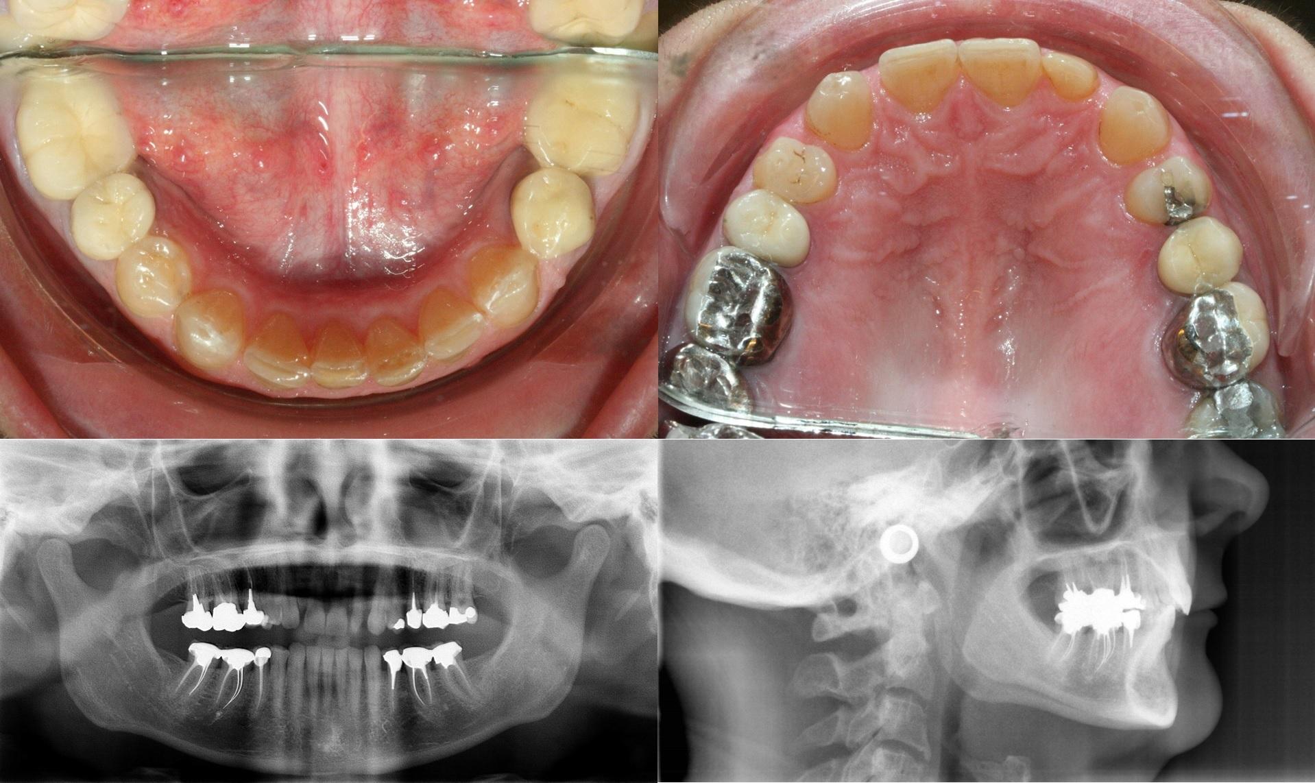 Orthodontie rapide - cas1.2 - apnee du sommeil.jpg