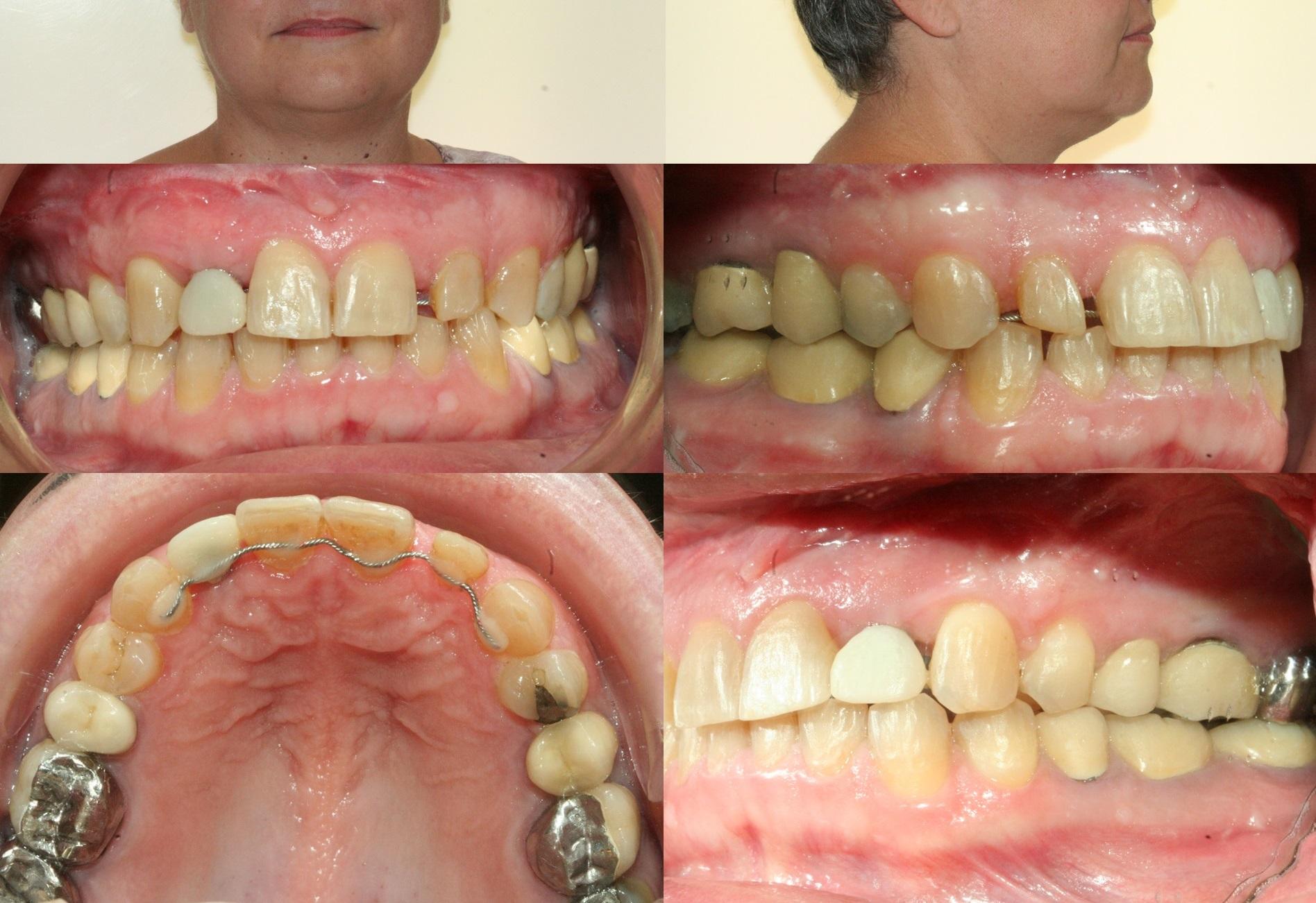 Orthodontie rapide - cas1.5.2 - apnee du sommeil.jpg