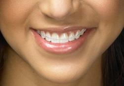 la couleur des dents